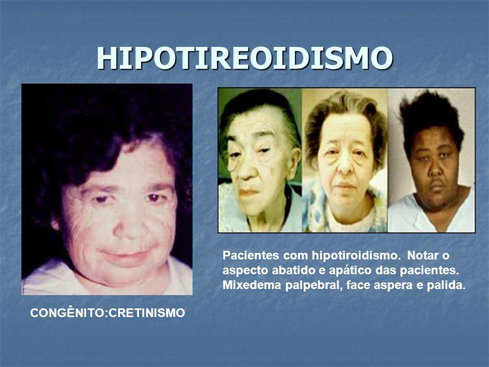 HIPOTIREOIDISMO CONGÊNITO:CRETINISMO Pacientes com hipotiroidismo.