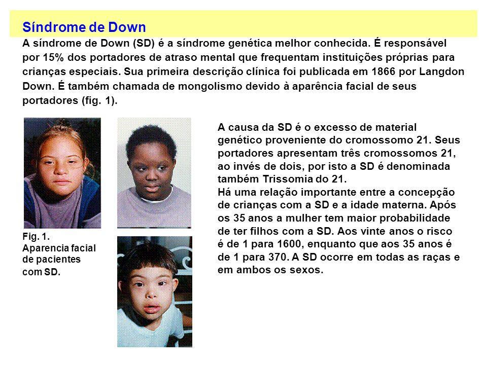 Síndrome de Down A síndrome de Down (SD) é a síndrome genética melhor conhecida. É responsável por 15% dos portadores de atraso mental que frequentam