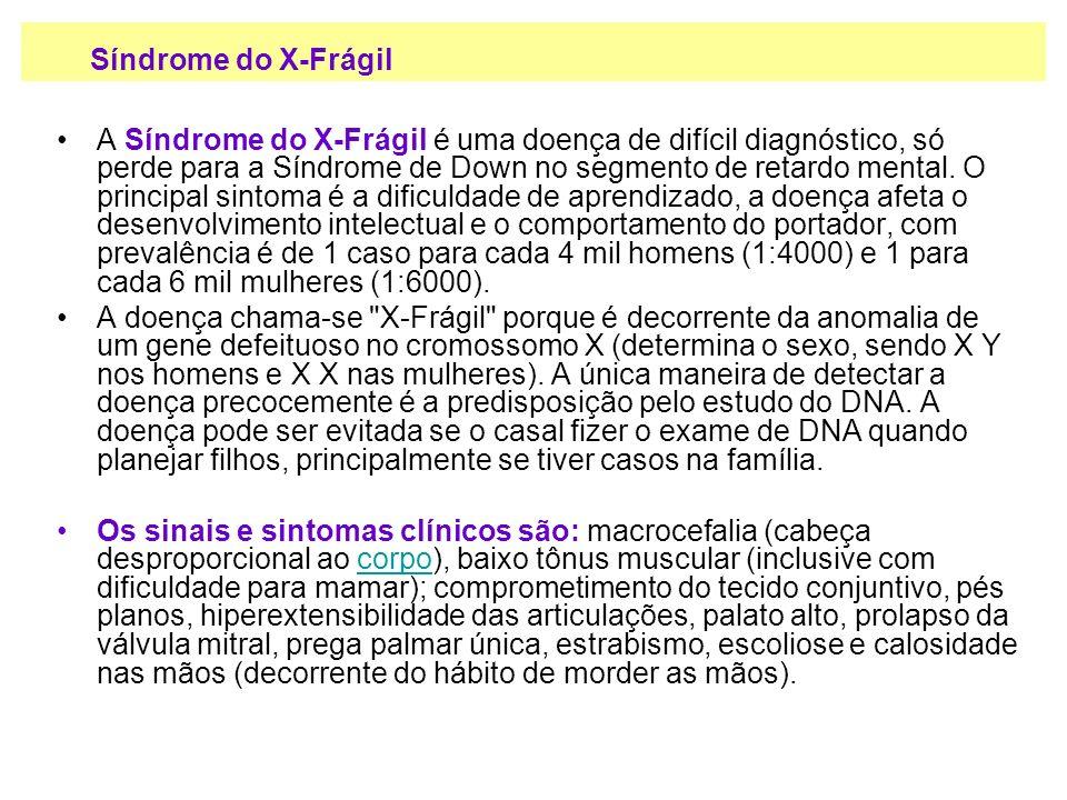 A Síndrome do X-Frágil é uma doença de difícil diagnóstico, só perde para a Síndrome de Down no segmento de retardo mental. O principal sintoma é a di