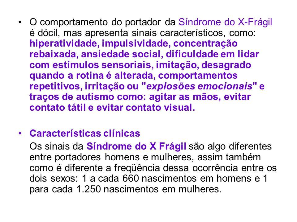 O comportamento do portador da Síndrome do X-Frágil é dócil, mas apresenta sinais característicos, como: hiperatividade, impulsividade, concentração r