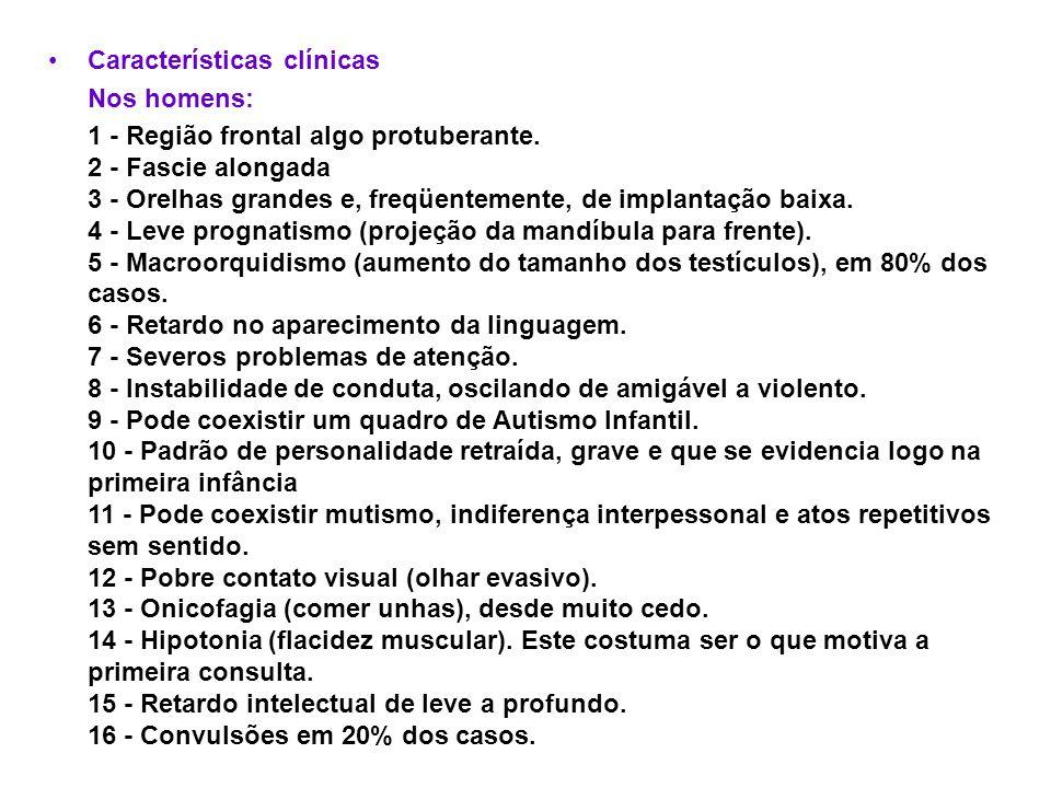 Características clínicas Nos homens: 1 - Região frontal algo protuberante. 2 - Fascie alongada 3 - Orelhas grandes e, freqüentemente, de implantação b