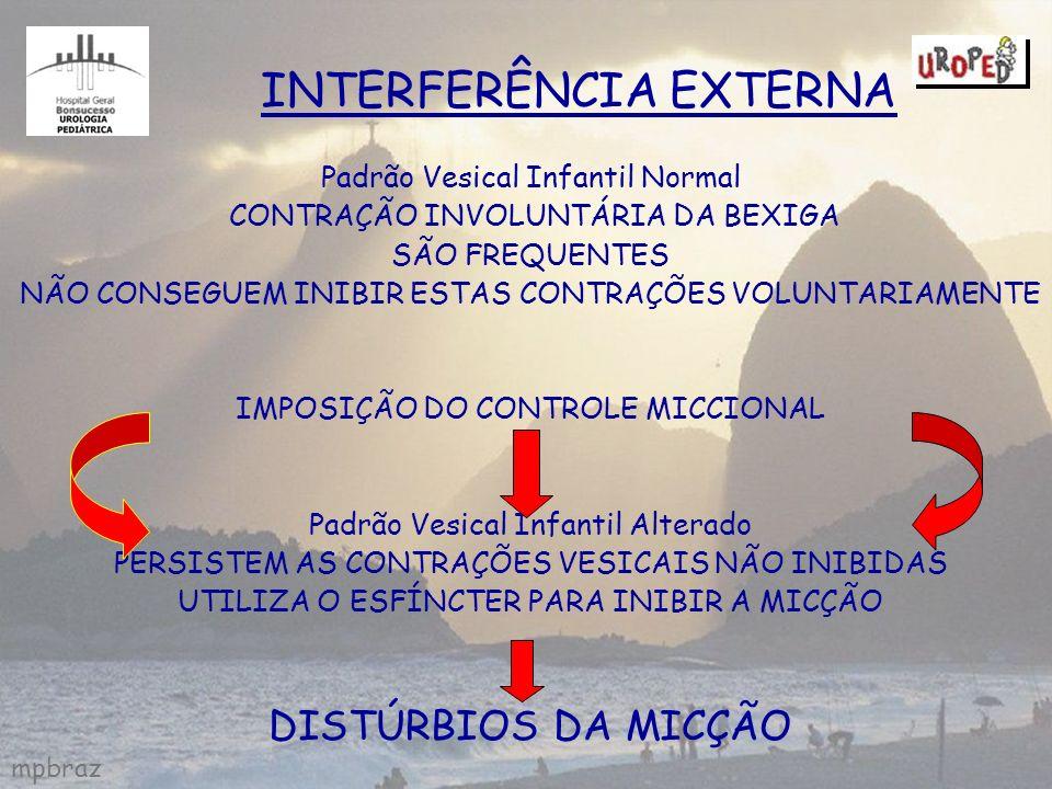 mpbraz INTERFERÊNCIA EXTERNA Padrão Vesical Infantil Normal CONTRAÇÃO INVOLUNTÁRIA DA BEXIGA SÃO FREQUENTES NÃO CONSEGUEM INIBIR ESTAS CONTRAÇÕES VOLU