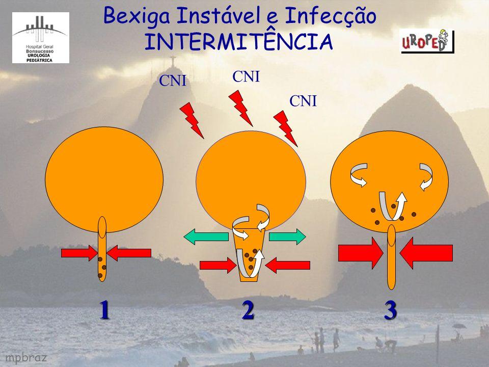 mpbraz CNI Bexiga Instável e Infecção INTERMITÊNCIA1 23