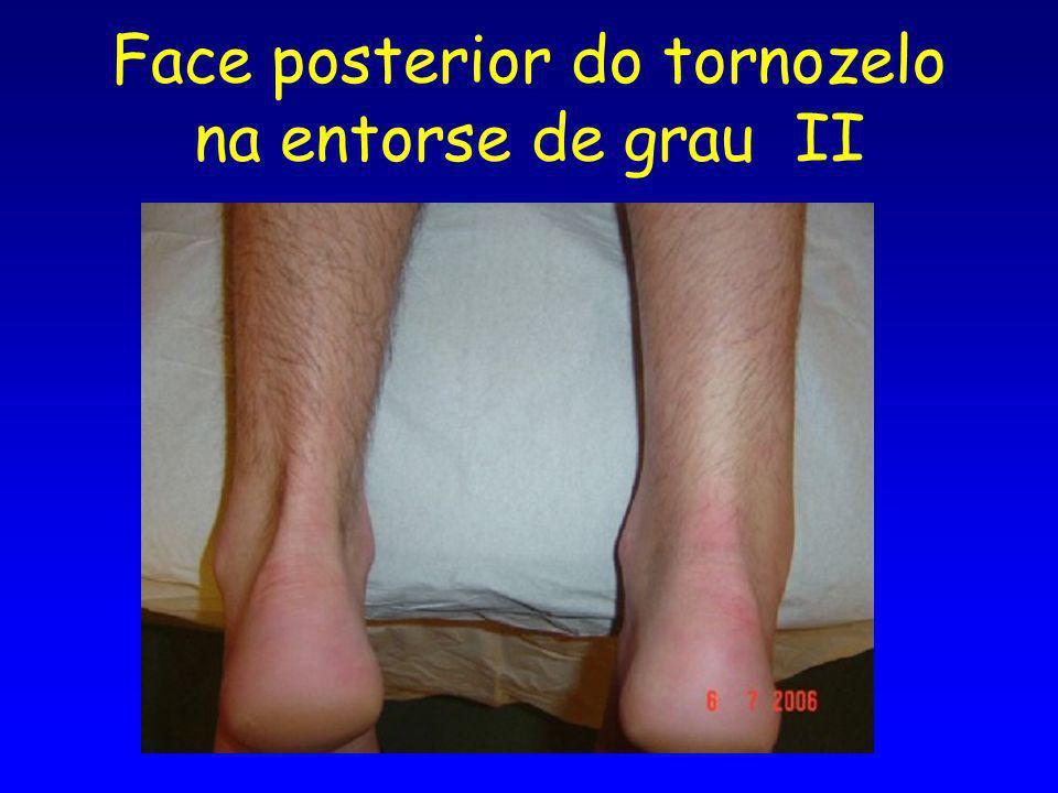 Face posterior do tornozelo na entorse de grau II