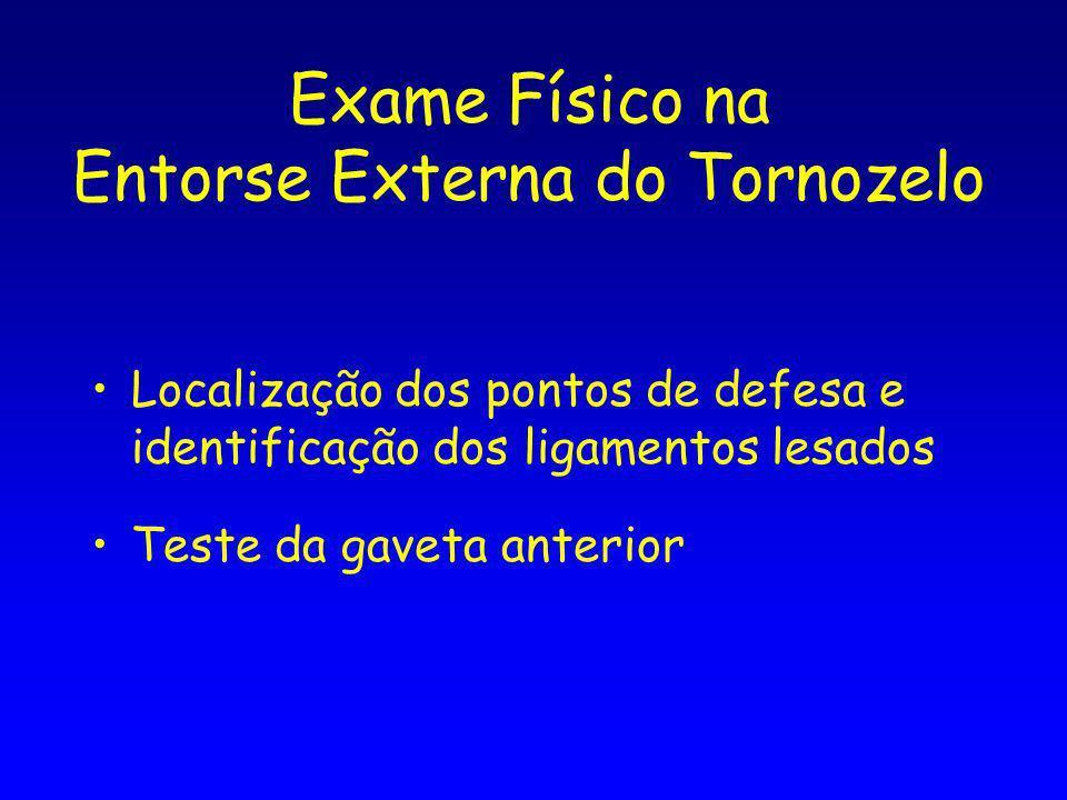 Exame Físico na Entorse Externa do Tornozelo Localização dos pontos de defesa e identificação dos ligamentos lesados Teste da gaveta anterior