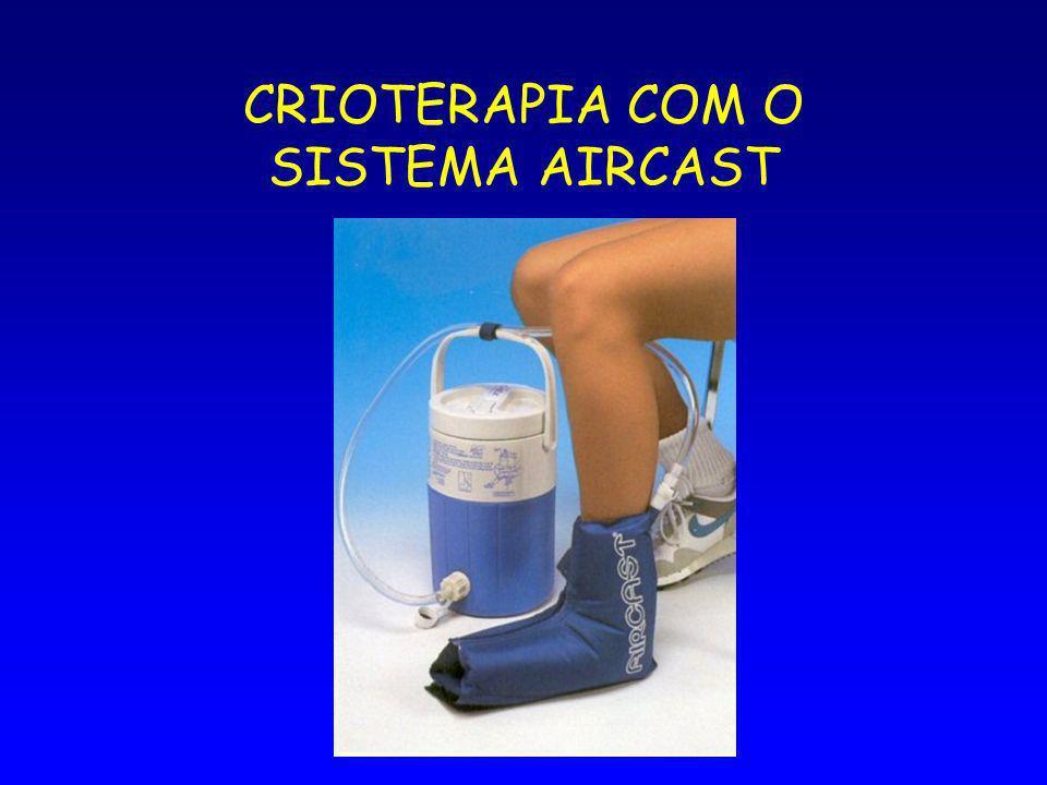 CRIOTERAPIA COM O SISTEMA AIRCAST