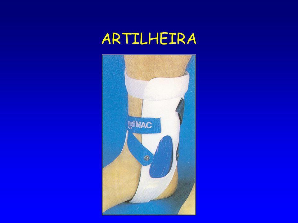 ARTILHEIRA