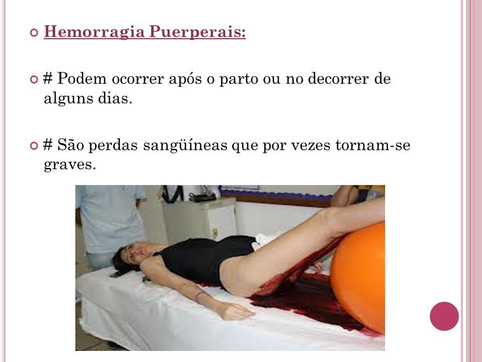 Hemorragia Puerperais: # Podem ocorrer após o parto ou no decorrer de alguns dias. # São perdas sangüíneas que por vezes tornam-se graves.