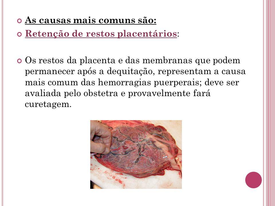 As causas mais comuns são: Retenção de restos placentários : Os restos da placenta e das membranas que podem permanecer após a dequitação, representam