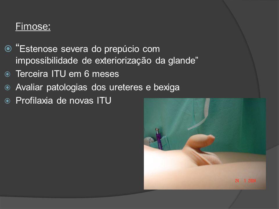 Fimose: Estenose severa do prepúcio com impossibilidade de exteriorização da glande Terceira ITU em 6 meses Avaliar patologias dos ureteres e bexiga P