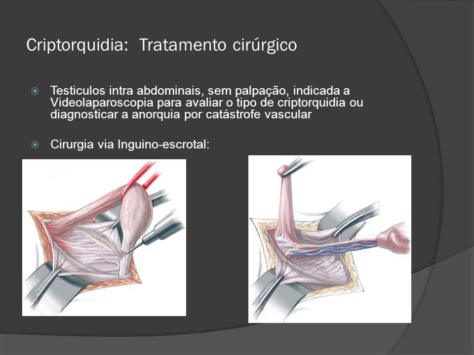 Criptorquidia: Tratamento cirúrgico Testiculos intra abdominais, sem palpação, indicada a Videolaparoscopia para avaliar o tipo de criptorquidia ou di
