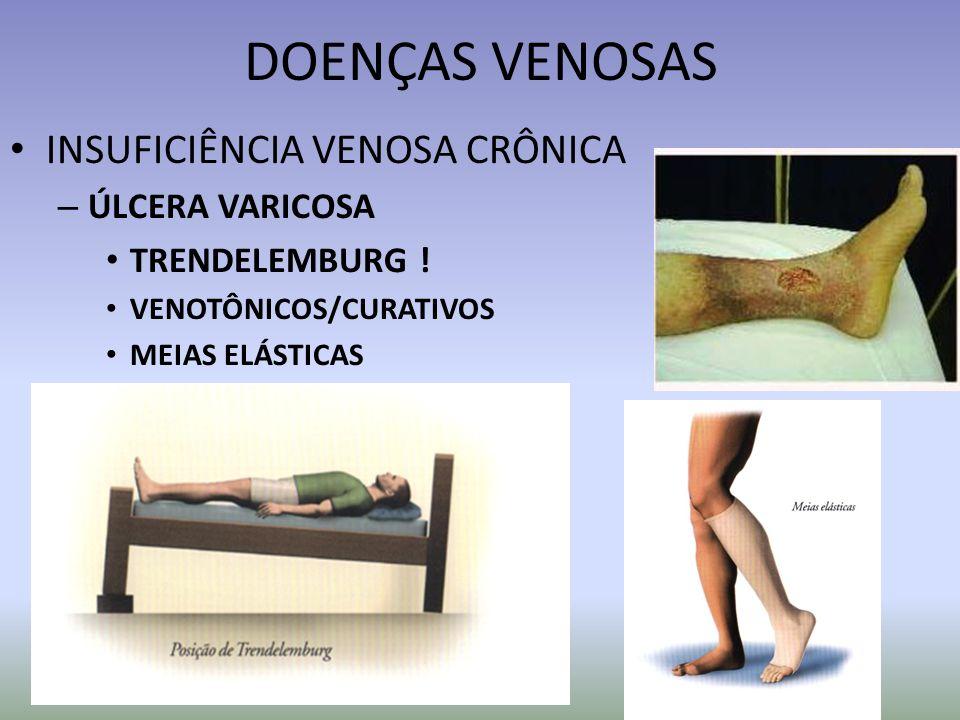 DOENÇAS VENOSAS INSUFICIÊNCIA VENOSA CRÔNICA – ÚLCERA VARICOSA TRENDELEMBURG ! VENOTÔNICOS/CURATIVOS MEIAS ELÁSTICAS