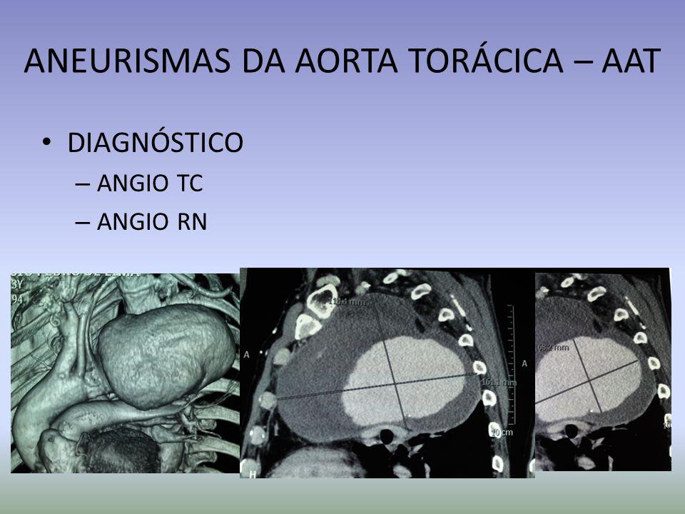ANEURISMAS DA AORTA TORÁCICA – AAT DIAGNÓSTICO – ANGIO TC – ANGIO RN