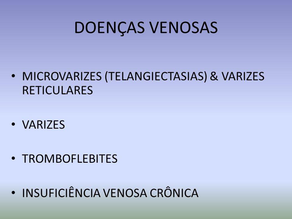 DOENÇAS VENOSAS MICROVARIZES (TELANGIECTASIAS) & VARIZES RETICULARES VARIZES TROMBOFLEBITES INSUFICIÊNCIA VENOSA CRÔNICA