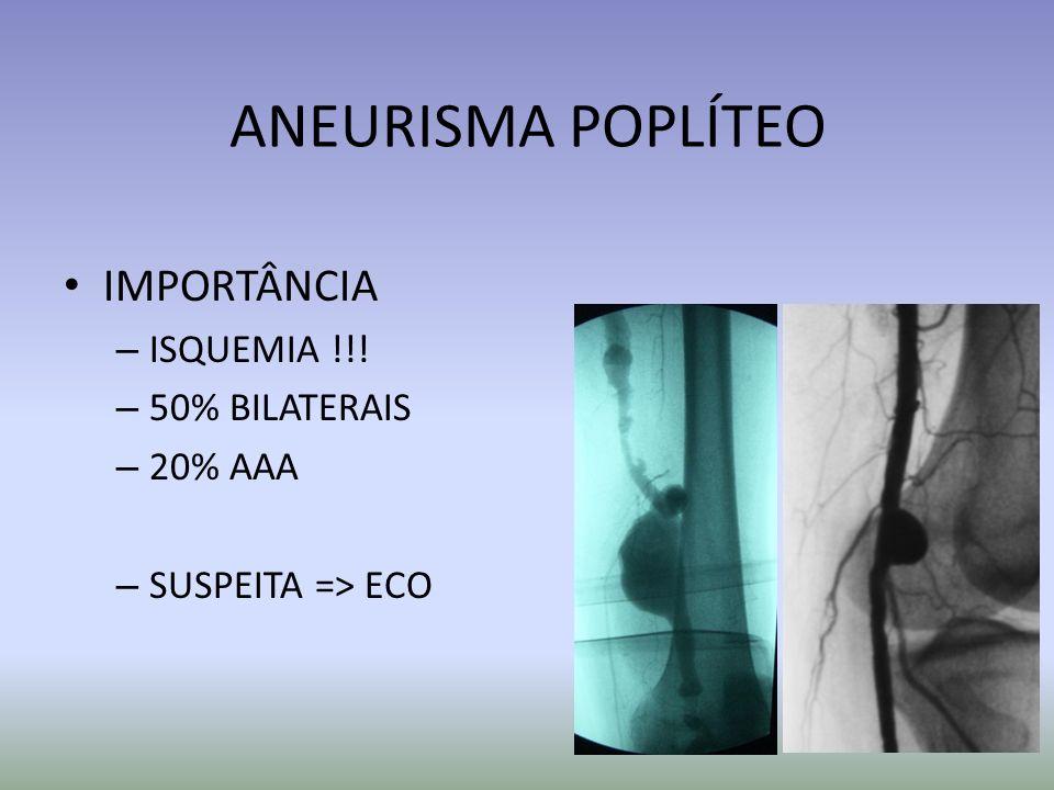 ANEURISMA POPLÍTEO IMPORTÂNCIA – ISQUEMIA !!! – 50% BILATERAIS – 20% AAA – SUSPEITA => ECO
