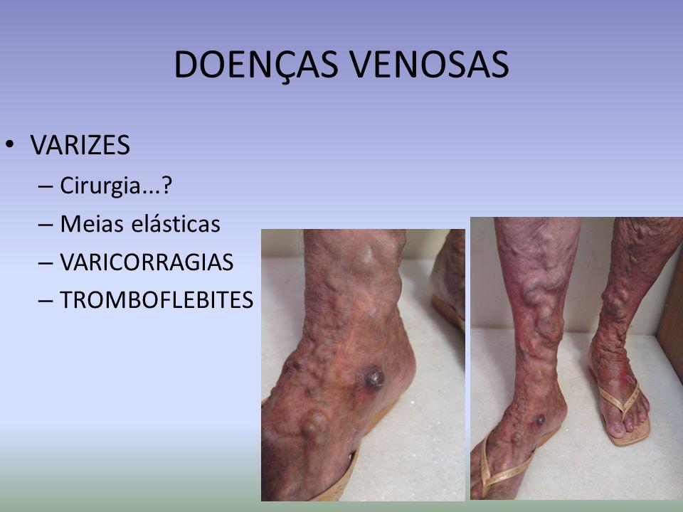 TROMBOFLEBITES MMII (4 a até 44% => TVP) PERNA – Medidas tópicas (gelo e anti-inflamatórios) – Repouso em posição de Trendelemburg (pés da cama elevados 15 a 20cm) – Anti-inflamatório sistêmico – Heparinas de baixo peso molecular– SC - (enoxiparina 40mg/dia) mantidas durante a fase inflamatória aguda – Observar progressão proximal e ou sinais sugestivos de TVP