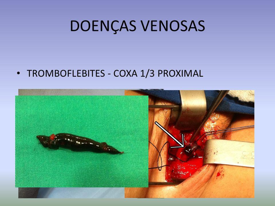 DOENÇAS VENOSAS TROMBOFLEBITES - COXA 1/3 PROXIMAL