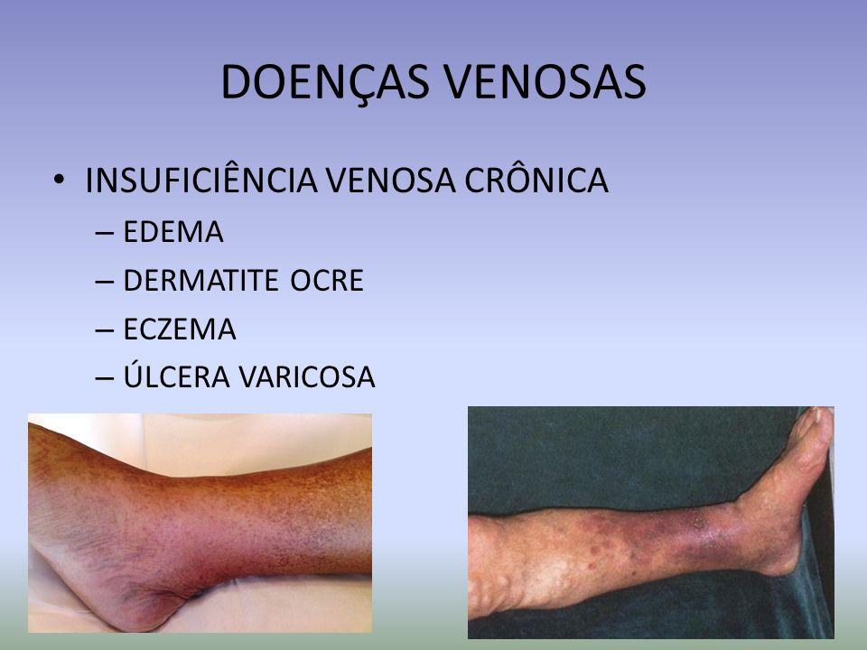 DOENÇAS VENOSAS INSUFICIÊNCIA VENOSA CRÔNICA – EDEMA – DERMATITE OCRE – ECZEMA – ÚLCERA VARICOSA