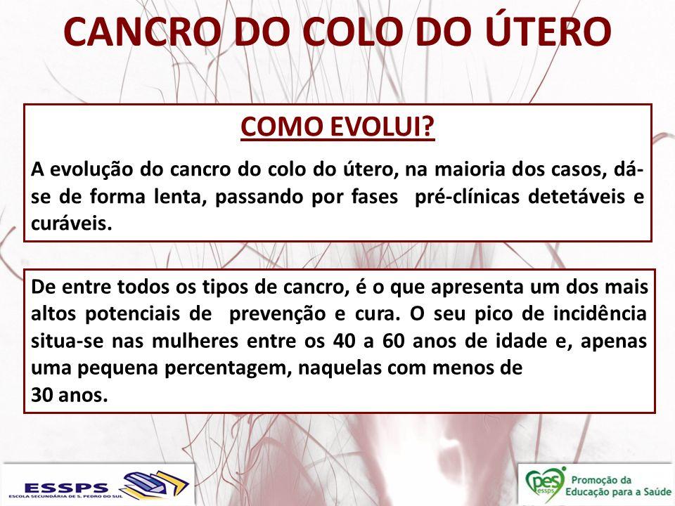 CANCRO DO COLO DO ÚTERO COLETA DO MATERIAL PARA EXAME DO PAPANICOLAU