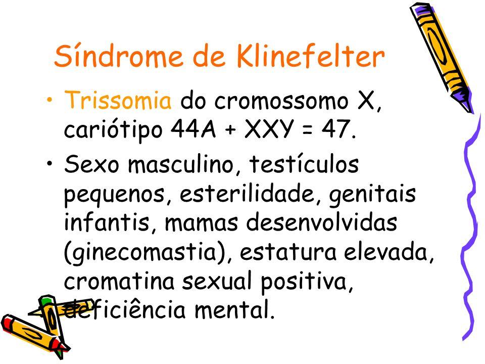 Síndrome de Klinefelter Trissomia do cromossomo X, cariótipo 44A + XXY = 47. Sexo masculino, testículos pequenos, esterilidade, genitais infantis, mam