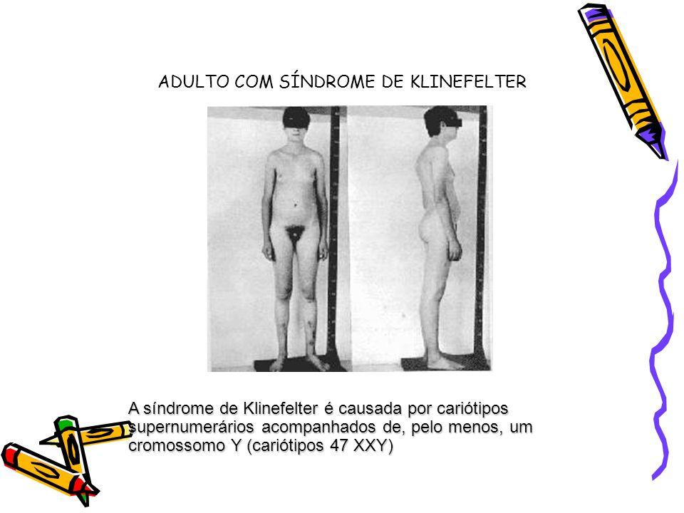 ADULTO COM SÍNDROME DE KLINEFELTER A síndrome de Klinefelter é causada por cariótipos supernumerários acompanhados de, pelo menos, um cromossomo Y (ca