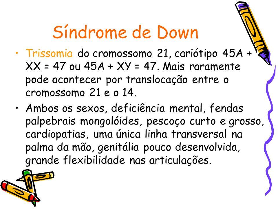 Síndrome de Down Trissomia do cromossomo 21, cariótipo 45A + XX = 47 ou 45A + XY = 47. Mais raramente pode acontecer por translocação entre o cromosso