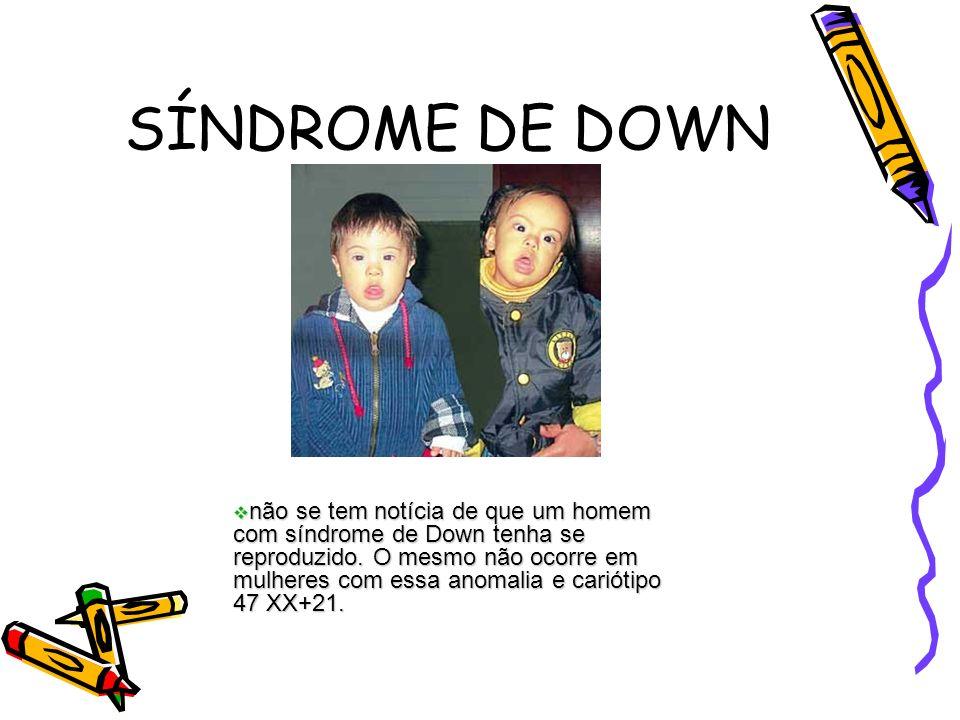 SÍNDROME DE DOWN não se tem notícia de que um homem com síndrome de Down tenha se reproduzido. O mesmo não ocorre em mulheres com essa anomalia e cari
