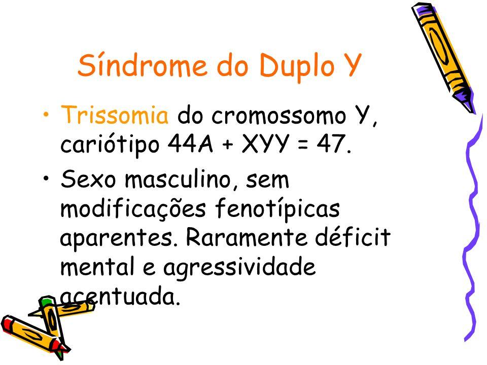 Síndrome do Duplo Y Trissomia do cromossomo Y, cariótipo 44A + XYY = 47. Sexo masculino, sem modificações fenotípicas aparentes. Raramente déficit men