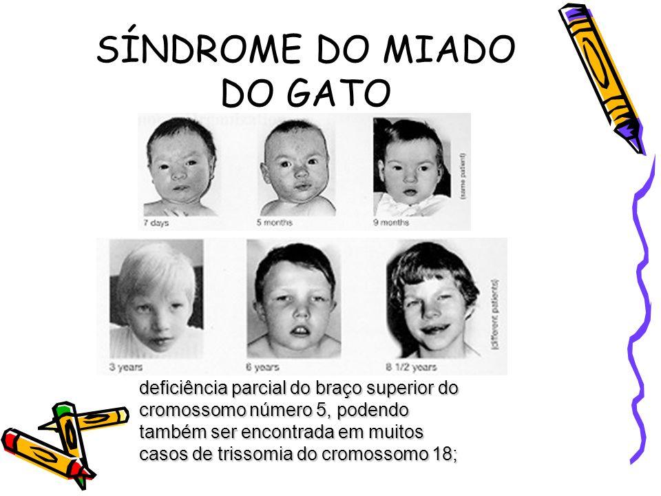 SÍNDROME DO MIADO DO GATO deficiência parcial do braço superior do cromossomo número 5, podendo também ser encontrada em muitos casos de trissomia do