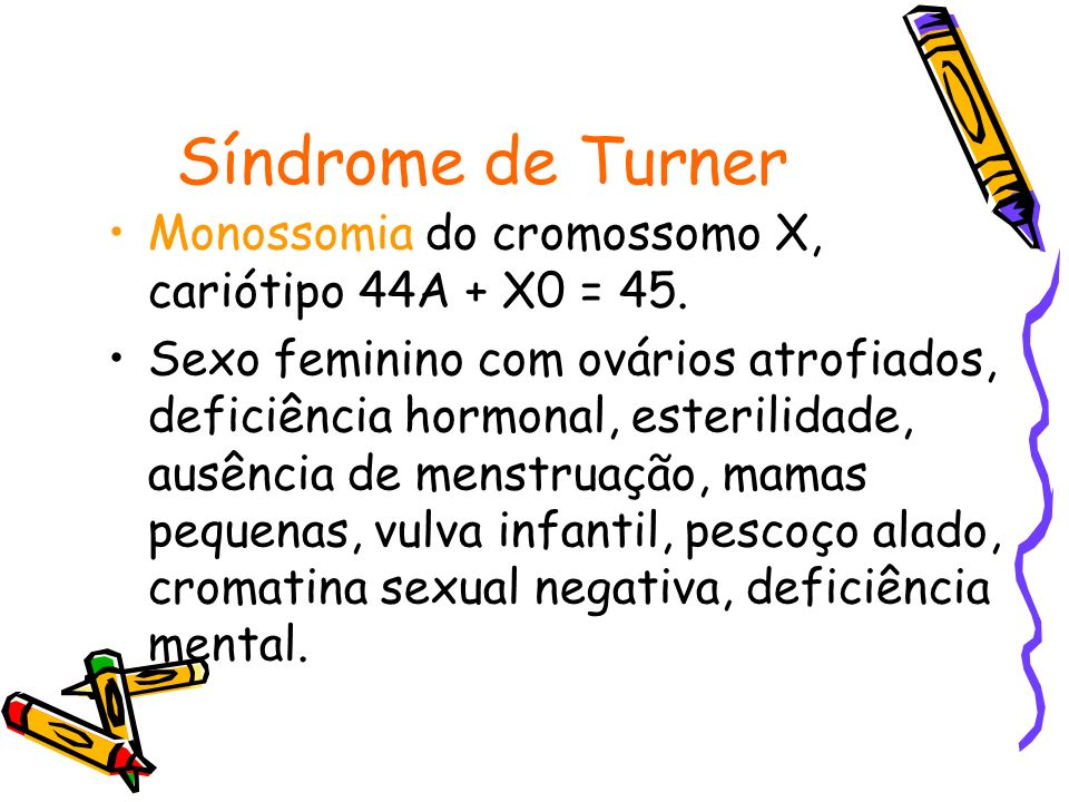 Síndrome do Duplo Y Trissomia do cromossomo Y, cariótipo 44A + XYY = 47.