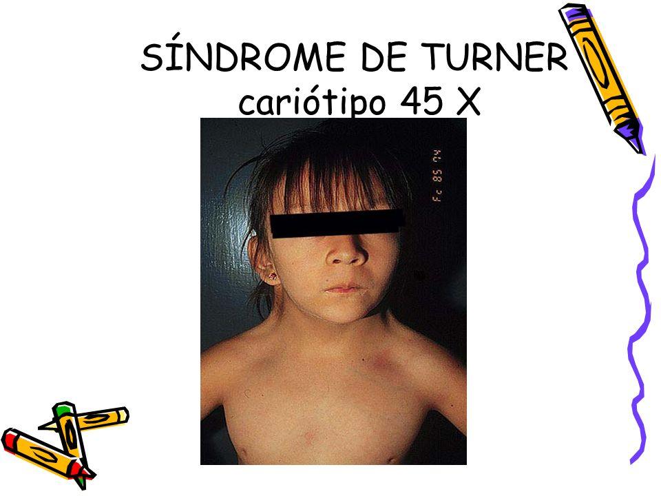 SÍNDROME DE TURNER cariótipo 45 X