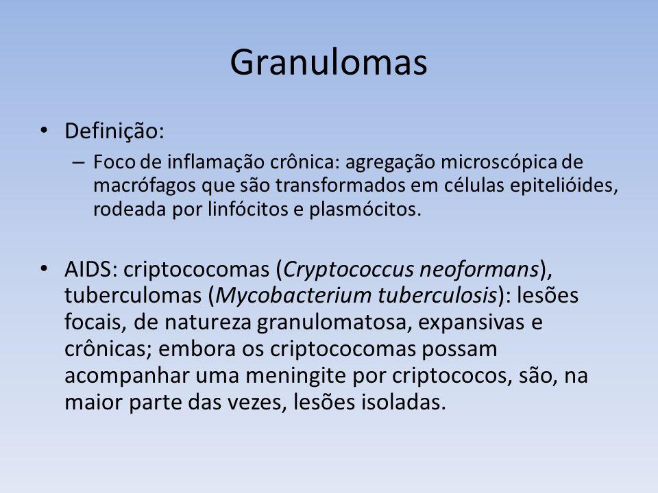 Granulomas Definição: – Foco de inflamação crônica: agregação microscópica de macrófagos que são transformados em células epitelióides, rodeada por li