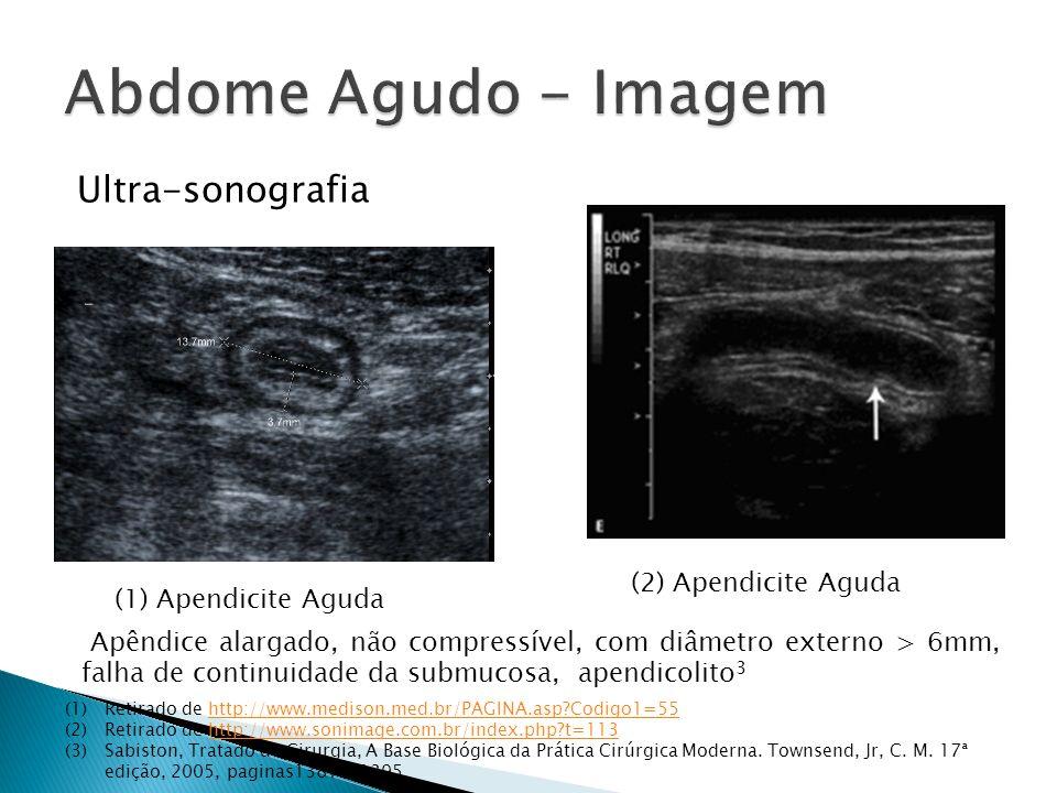 Ultra-sonografia (1) Apendicite Aguda (1)Retirado de http://www.medison.med.br/PAGINA.asp?Codigo1=55http://www.medison.med.br/PAGINA.asp?Codigo1=55 (2)Retirado de http://www.sonimage.com.br/index.php?t=113http://www.sonimage.com.br/index.php?t=113 (3)Sabiston, Tratado de Cirurgia, A Base Biológica da Prática Cirúrgica Moderna.