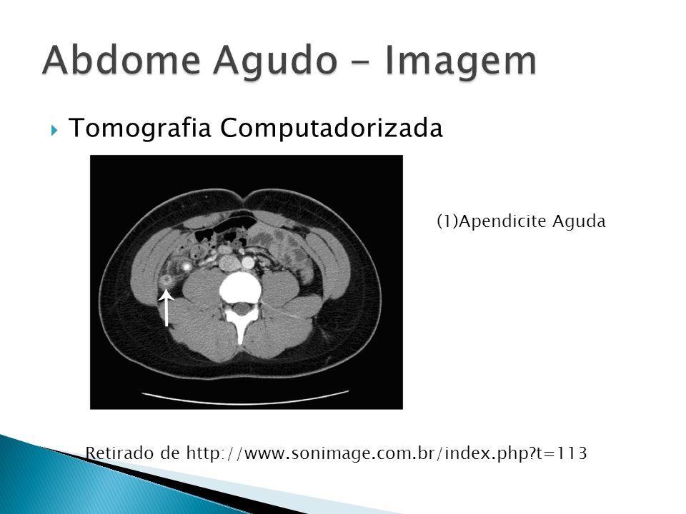 Tomografia Computadorizada (1)Apendicite Aguda Retirado de http://www.sonimage.com.br/index.php?t=113