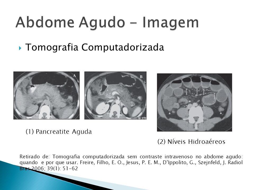 Tomografia Computadorizada (1) Pancreatite Aguda (2) Níveis Hidroaéreos Retirado de: Tomografia computadorizada sem contraste intravenoso no abdome agudo: quando e por que usar.