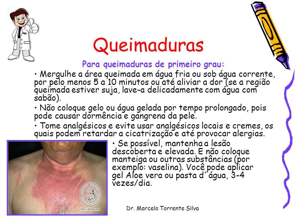 Dr. Marcelo Torrente Silva Queimaduras Para queimaduras de primeiro grau: Mergulhe a área queimada em água fria ou sob água corrente, por pelo menos 5