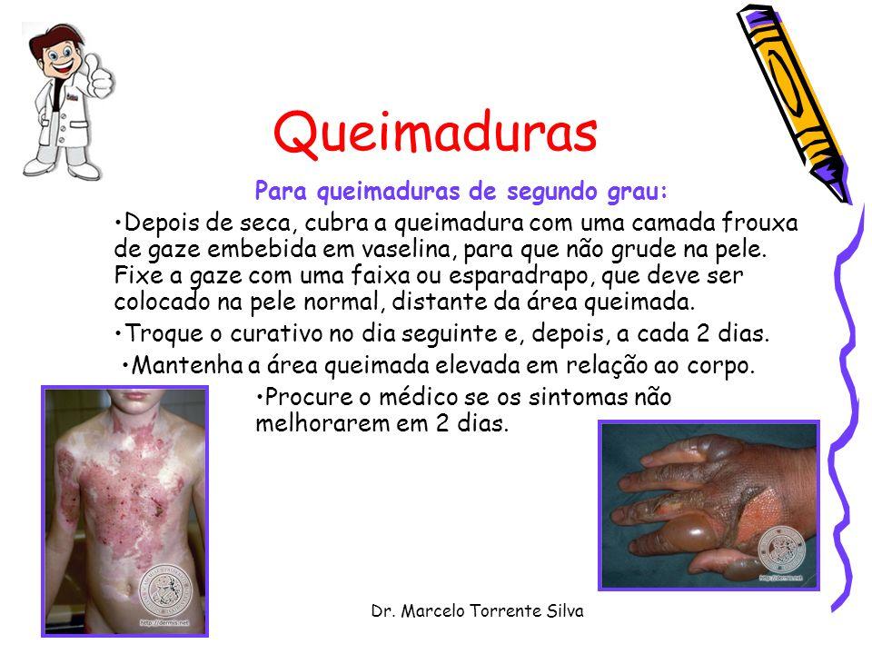 Dr. Marcelo Torrente Silva Queimaduras Para queimaduras de segundo grau: Depois de seca, cubra a queimadura com uma camada frouxa de gaze embebida em