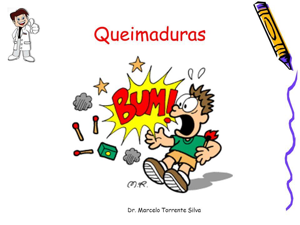 Dr.Marcelo Torrente Silva Queimaduras O fogo exerce uma atração quase mágica na infância.