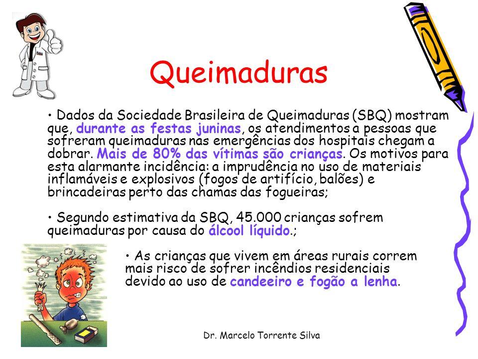 Dr. Marcelo Torrente Silva Queimaduras Dados da Sociedade Brasileira de Queimaduras (SBQ) mostram que, durante as festas juninas, os atendimentos a pe