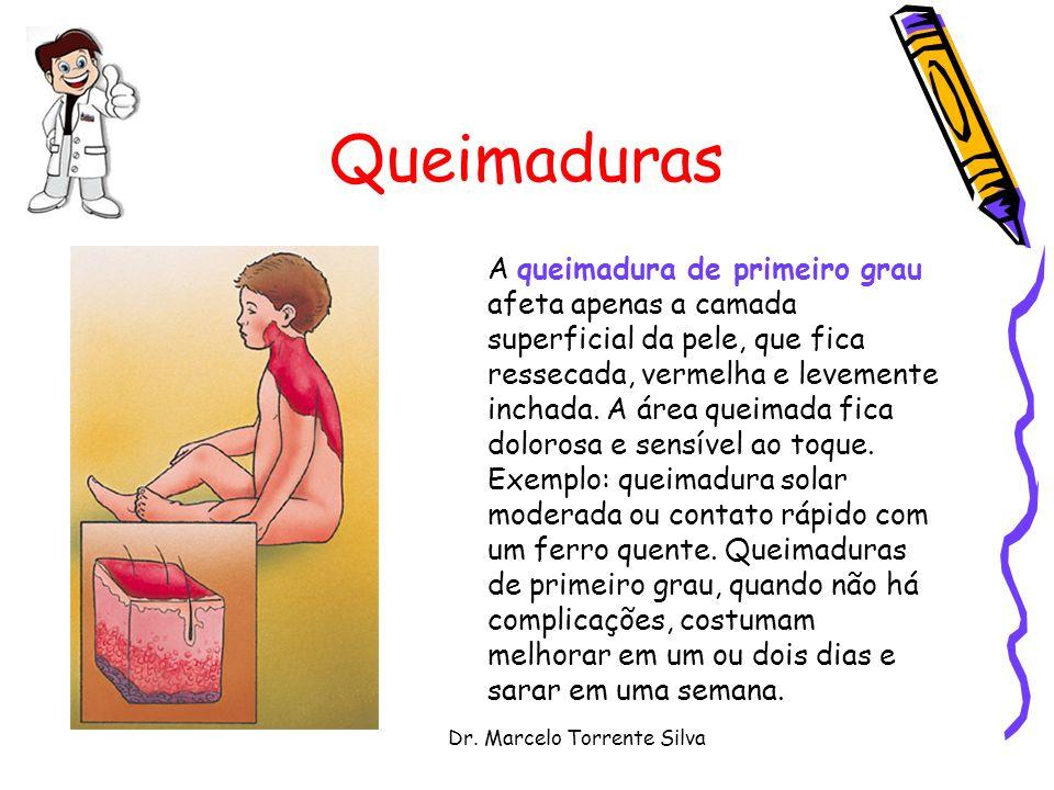 Dr. Marcelo Torrente Silva Queimaduras A queimadura de primeiro grau afeta apenas a camada superficial da pele, que fica ressecada, vermelha e levemen
