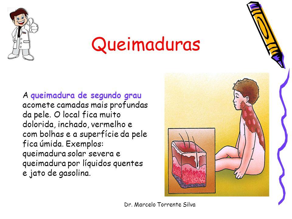 Dr. Marcelo Torrente Silva Queimaduras A queimadura de segundo grau acomete camadas mais profundas da pele. O local fica muito dolorida, inchado, verm