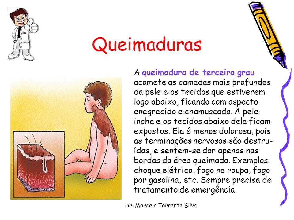 Dr. Marcelo Torrente Silva Queimaduras A queimadura de terceiro grau acomete as camadas mais profundas da pele e os tecidos que estiverem logo abaixo,