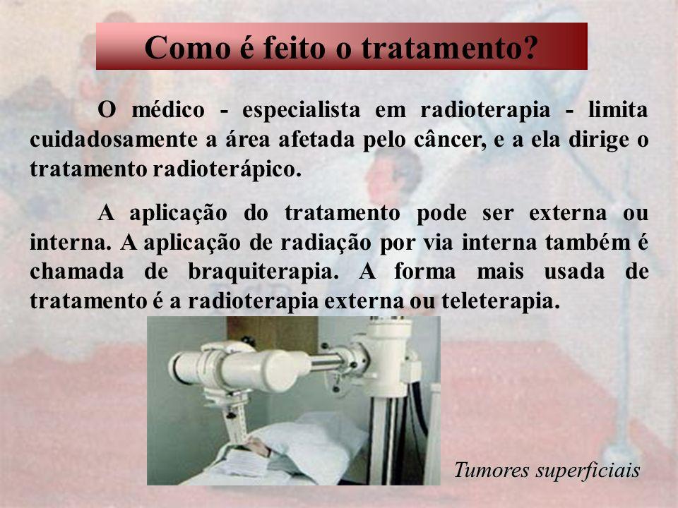 Como é feito o tratamento? O médico - especialista em radioterapia - limita cuidadosamente a área afetada pelo câncer, e a ela dirige o tratamento rad