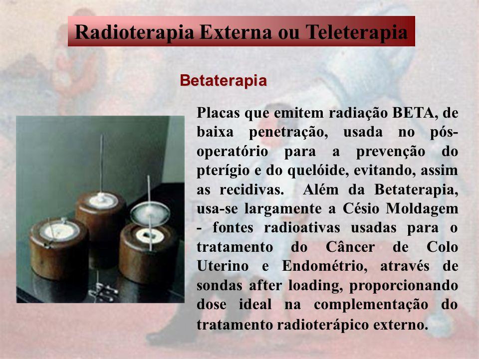 Radioterapia Externa ou Teleterapia Betaterapia Placas que emitem radiação BETA, de baixa penetração, usada no pós- operatório para a prevenção do pte