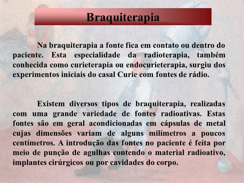 Braquiterapia Na braquiterapia a fonte fica em contato ou dentro do paciente. Esta especialidade da radioterapia, também conhecida como curieterapia o