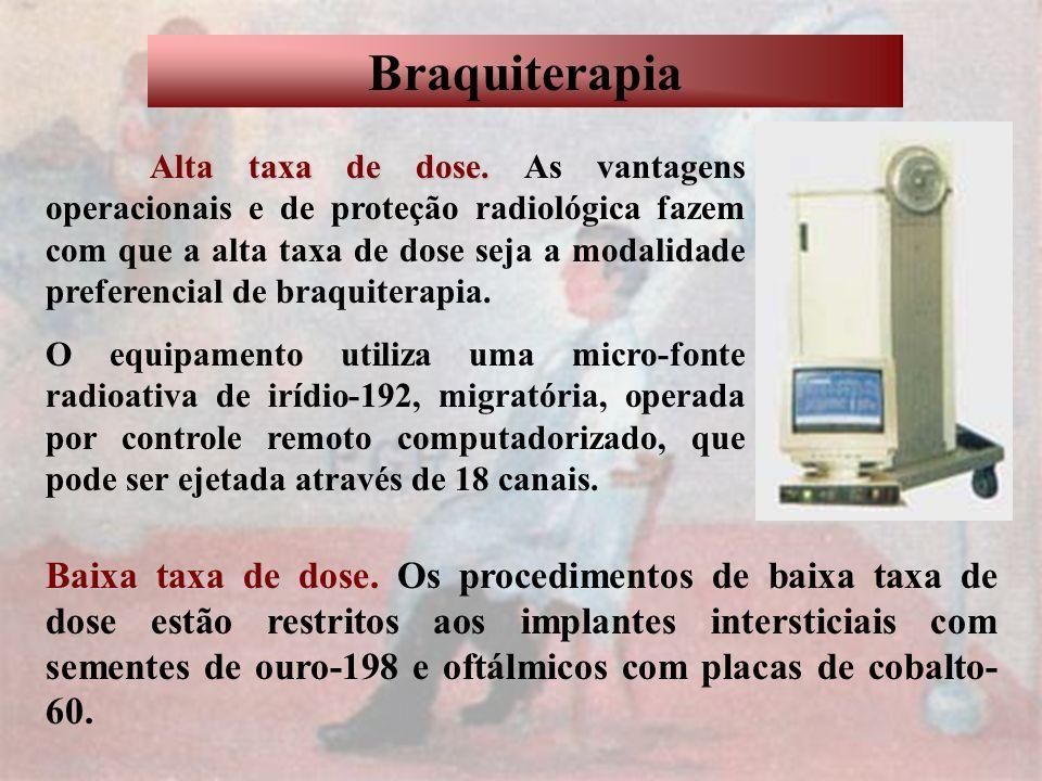Braquiterapia Alta taxa de dose. Alta taxa de dose. As vantagens operacionais e de proteção radiológica fazem com que a alta taxa de dose seja a modal
