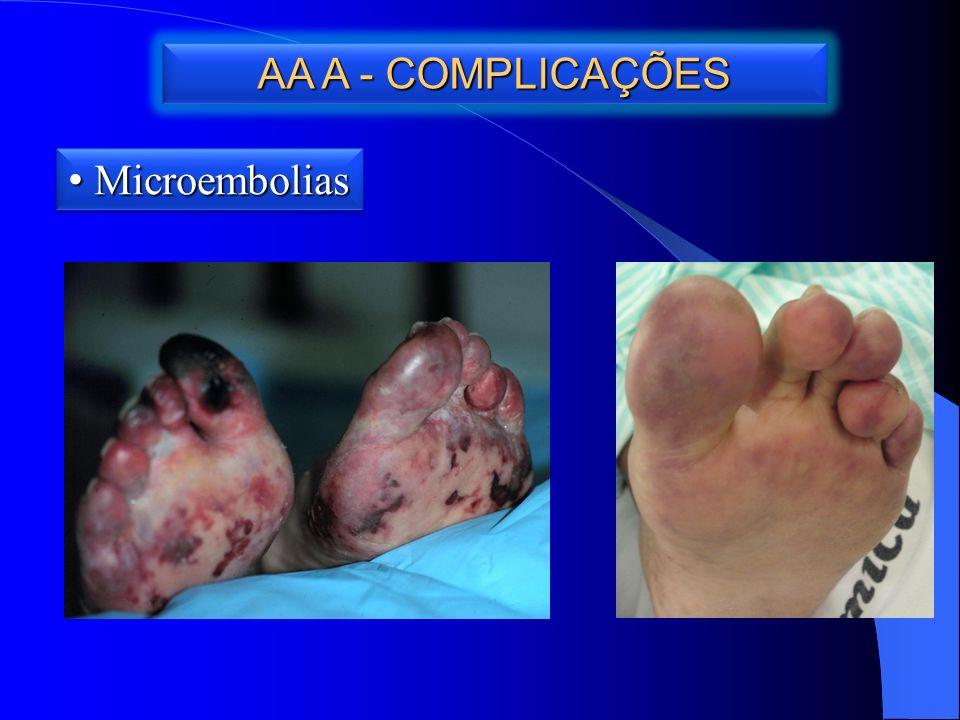 AA A - COMPLICAÇÕES Microembolias Microembolias