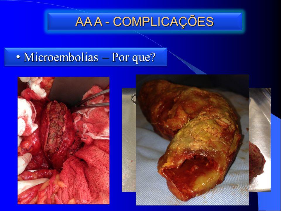 AA A - COMPLICAÇÕES Microembolias – Por que Microembolias – Por que