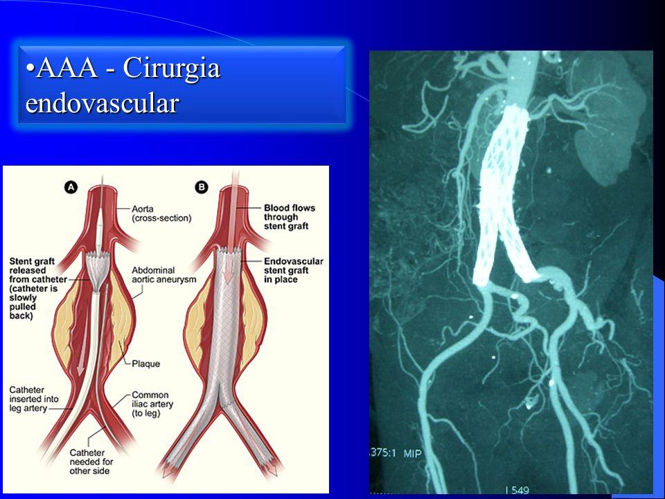 AAA - Cirurgia endovascularAAA - Cirurgia endovascular