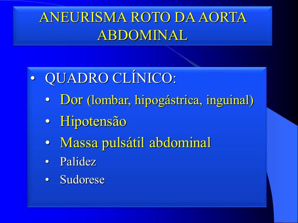 ANEURISMA ROTO DA AORTA ABDOMINAL QUADRO CLÍNICO:QUADRO CLÍNICO: Dor (lombar, hipogástrica, inguinal)Dor (lombar, hipogástrica, inguinal) HipotensãoHipotensão Massa pulsátil abdominalMassa pulsátil abdominal PalidezPalidez SudoreseSudorese QUADRO CLÍNICO:QUADRO CLÍNICO: Dor (lombar, hipogástrica, inguinal)Dor (lombar, hipogástrica, inguinal) HipotensãoHipotensão Massa pulsátil abdominalMassa pulsátil abdominal PalidezPalidez SudoreseSudorese